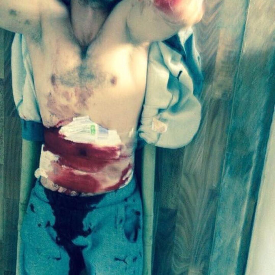 Боец ММА Хабиб Нурмагамедов рассказал о пытках в Дагестане, его другу пришлось вскрыть себе живот
