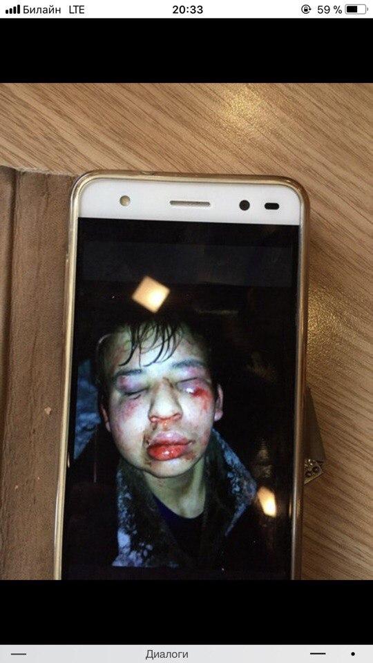 Подростки из Покрова жестоко избили семиклассника-инвалида